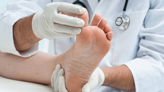 What Is The New Treatment For Morton's Neuroma - Featured Image