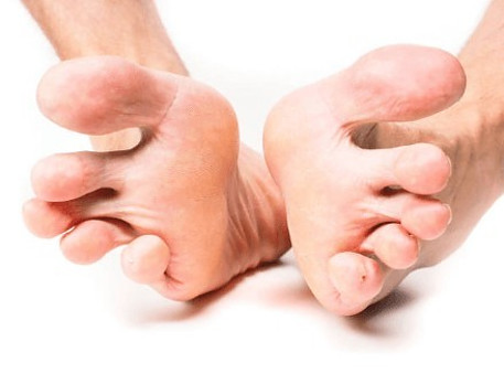 Signs And Symptoms Of Morton's Neuroma - Spreading Toes